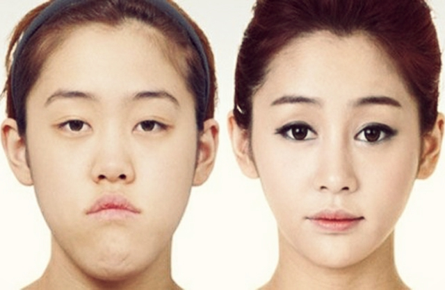 plastic surgery trends in south korea In a recent buzzfeed video, three south koreans saw what they would look like if they conformed to the nation's physical ideal, via plastic surgerysouth korea is considered the plastic surgery capital of the world.